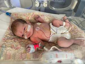Alice, a small white baby with brown hair is laying on a pastel yellow and pink coloured patterned mat in an incubator. She is wearing a nappy as has oxygen prongs in her nose, a cannula on her right hand and various wires over her body. She looks very grumpy!